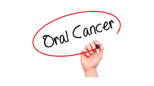 Potentially Malignant Disorders: Be aware of Oral Cancer