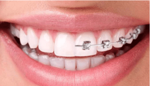 Clear Aligner Treatment – Align your teeth without compromising on your smile